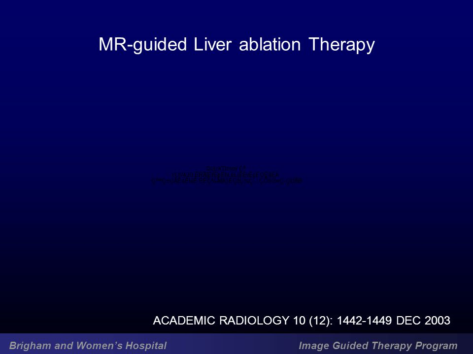 Brigham and Women's Hospital Image Guided Therapy Program ACADEMIC RADIOLOGY 10 (12): 1442-1449 DEC 2003 MR-guided Liver ablation Therapy