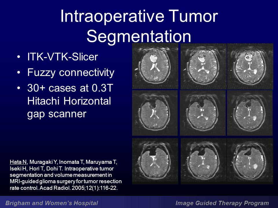 Brigham and Women's Hospital Image Guided Therapy Program Intraoperative Tumor Segmentation ITK-VTK-Slicer Fuzzy connectivity 30+ cases at 0.3T Hitachi Horizontal gap scanner Hata N, Muragaki Y, Inomata T, Maruyama T, Iseki H, Hori T, Dohi T.