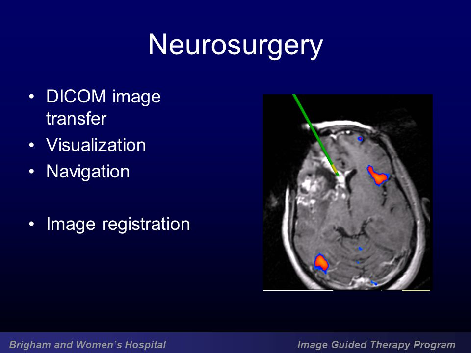 Brigham and Women's Hospital Image Guided Therapy Program Neurosurgery DICOM image transfer Visualization Navigation Image registration