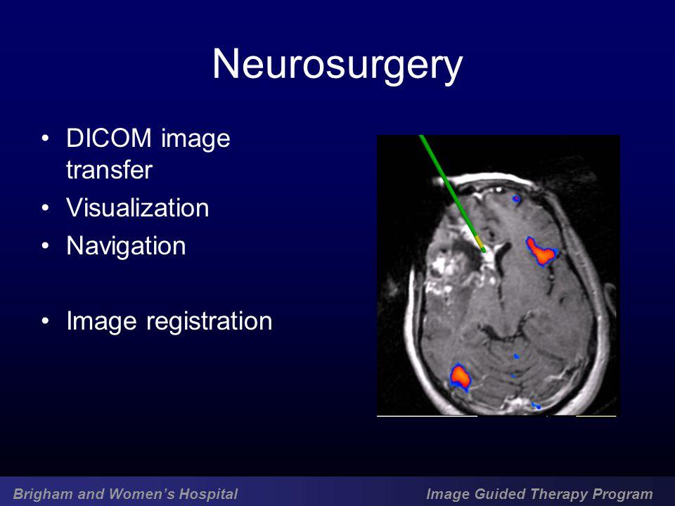 Brigham and Women's Hospital Image Guided Therapy Program Neurosurgery DICOM image transfer Visualization Navigation Image registration