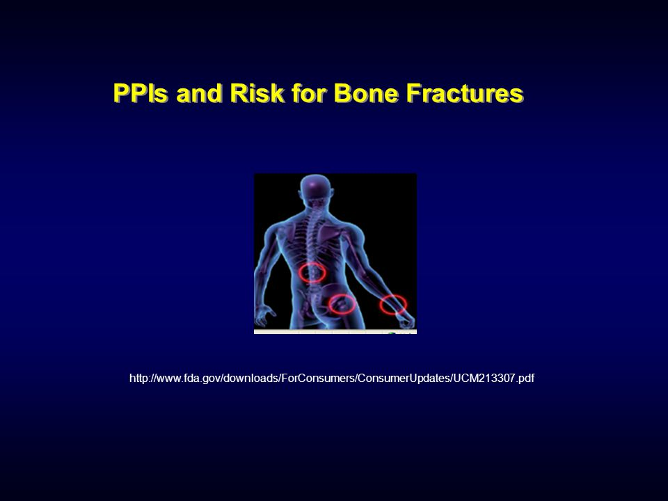 PPIs and Risk for Bone Fractures http://www.fda.gov/downloads/ForConsumers/ConsumerUpdates/UCM213307.pdf