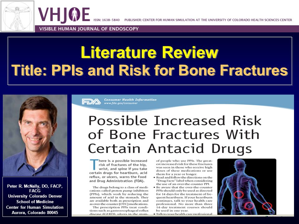 Literature Review Title: PPIs and Risk for Bone Fractures Peter R.