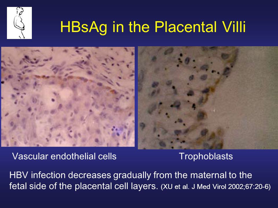 HBsAg in the Placental Villi Vascular endothelial cellsTrophoblasts HBV infection decreases gradually from the maternal to the fetal side of the place