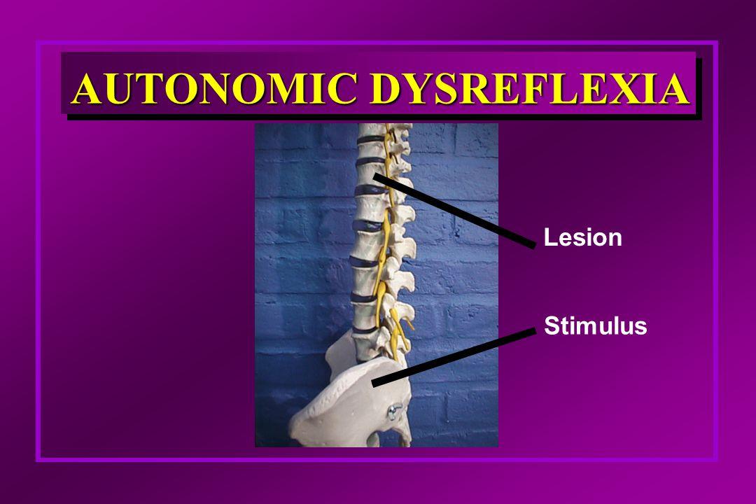 Lesion Stimulus AUTONOMIC DYSREFLEXIA