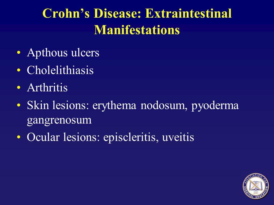 Crohn's Disease: Extraintestinal Manifestations Apthous ulcers Cholelithiasis Arthritis Skin lesions: erythema nodosum, pyoderma gangrenosum Ocular le