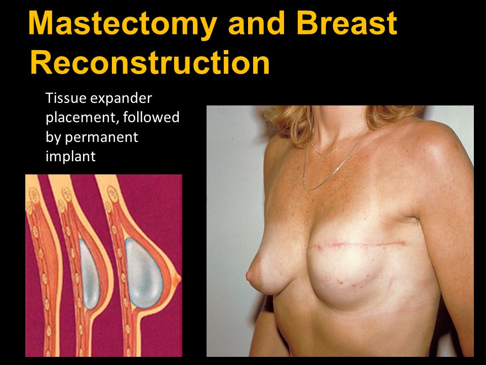 Mastectomy and Breast Reconstruction Tissue expander placement, followed by permanent implant