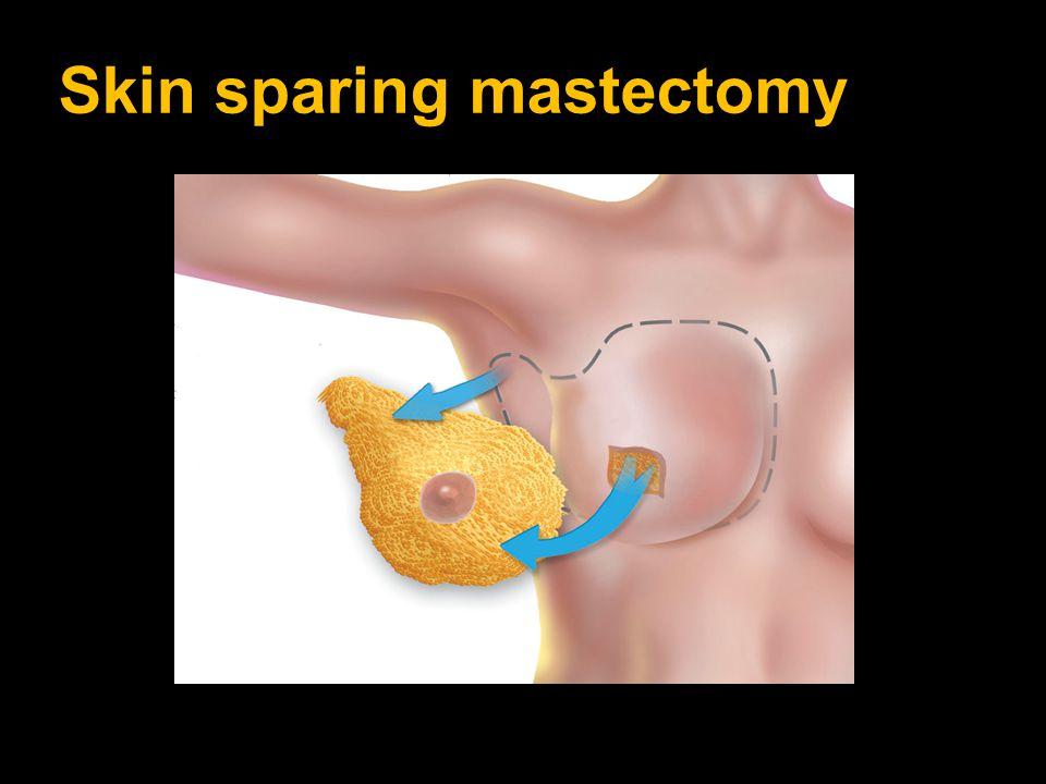 Skin sparing mastectomy