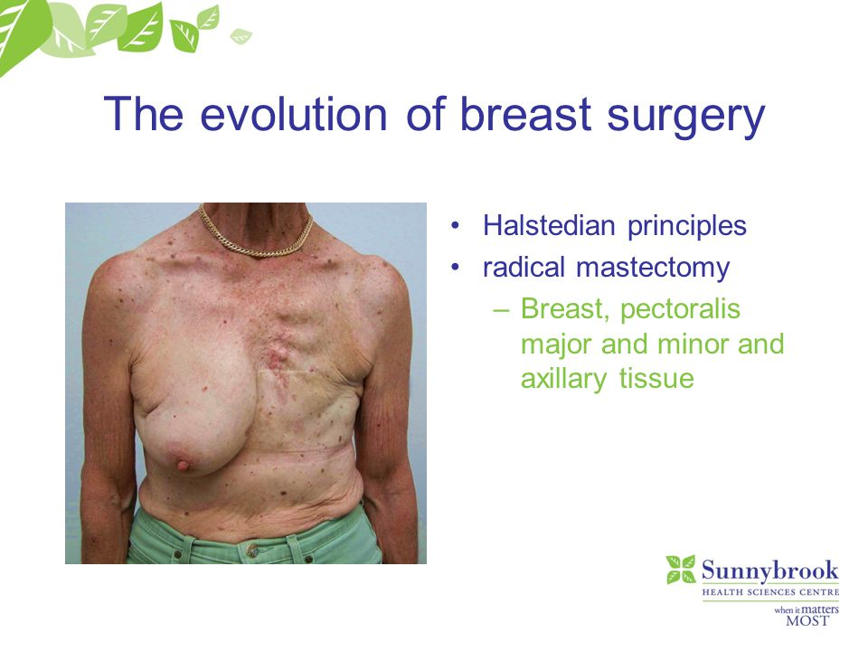 The evolution of breast surgery Halstedian principles radical mastectomy –Breast, pectoralis major and minor and axillary tissue