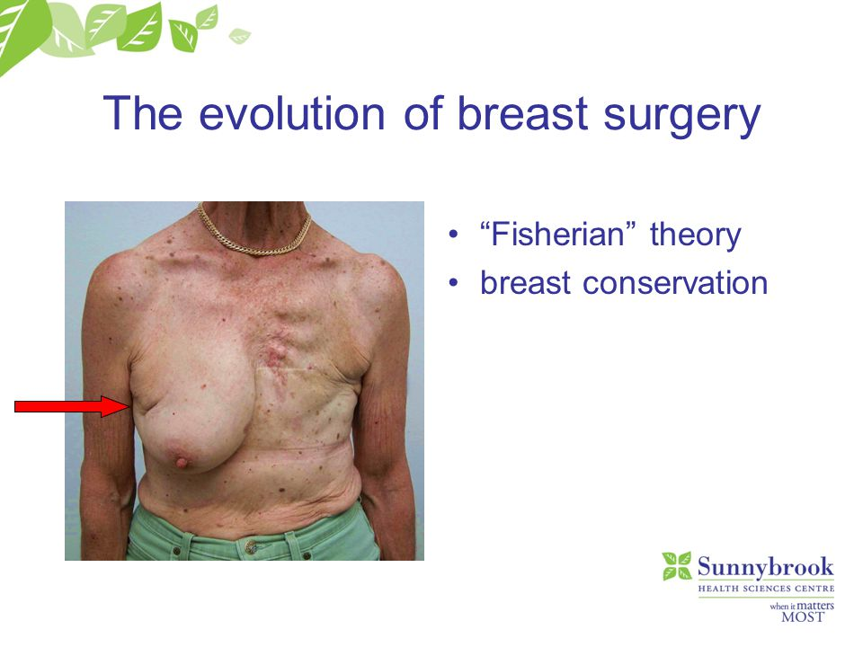 "The evolution of breast surgery ""Fisherian"" theory breast conservation"