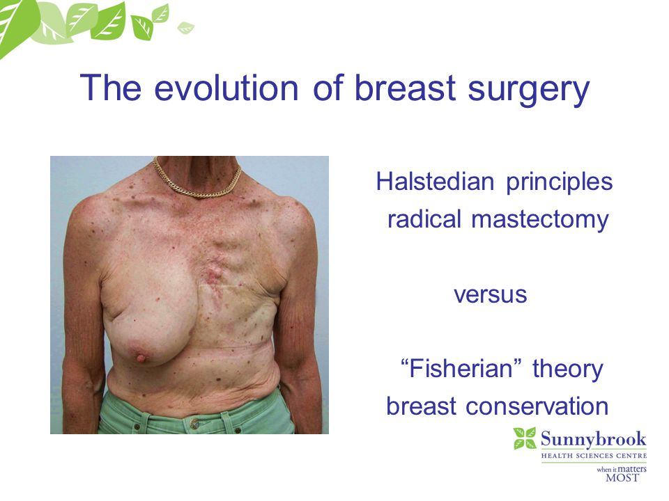 "The evolution of breast surgery Halstedian principles radical mastectomy versus ""Fisherian"" theory breast conservation"