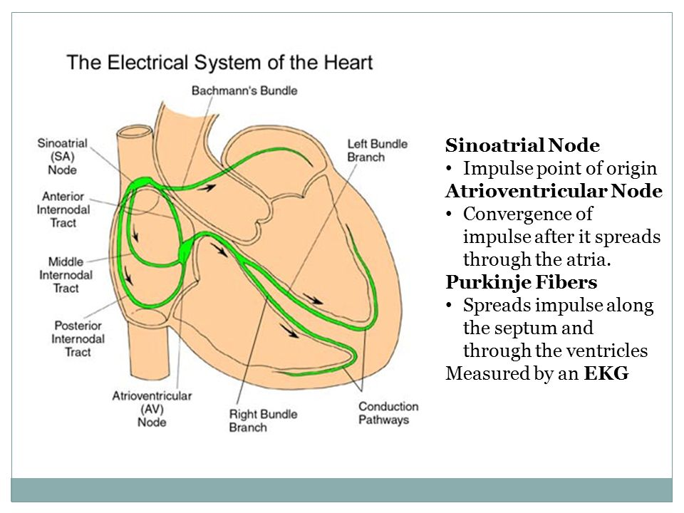 Automated External Defibrillation The two most common abnormal rhythms leading to cardiac arrest are ventricular fibrillation (V-fib) and ventricular tachycardia (V-tach).