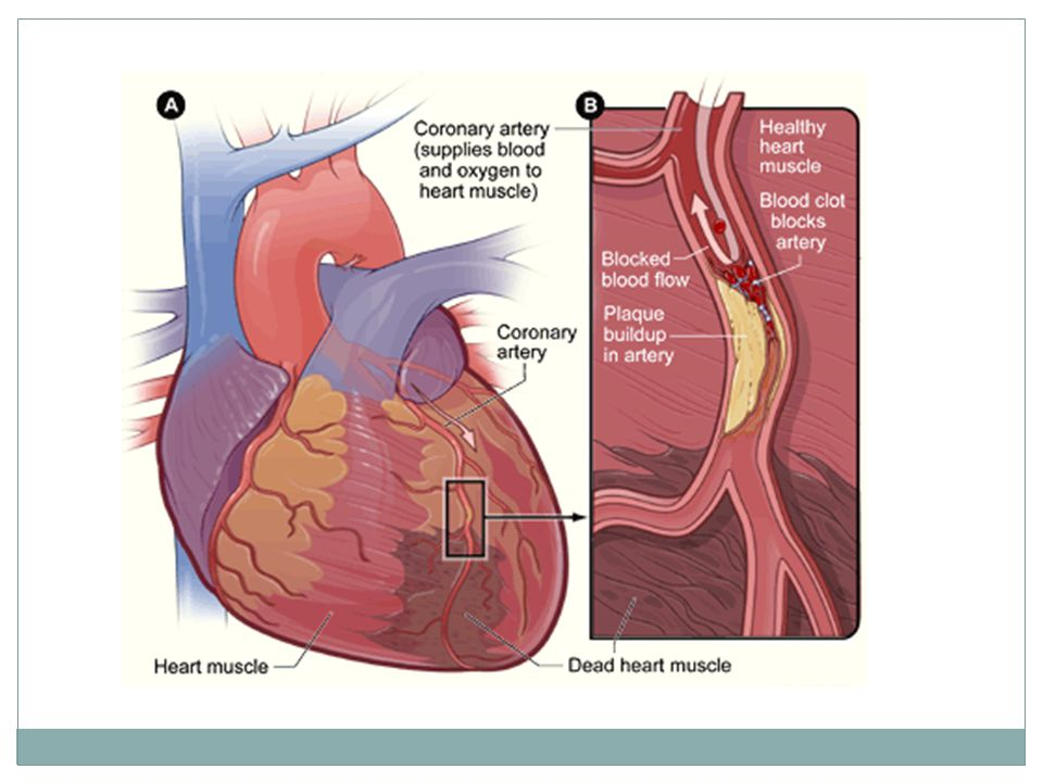 Recognizing Signals of a Heart Attack Heart attacks are caused by an obstruction in the coronary arteries.