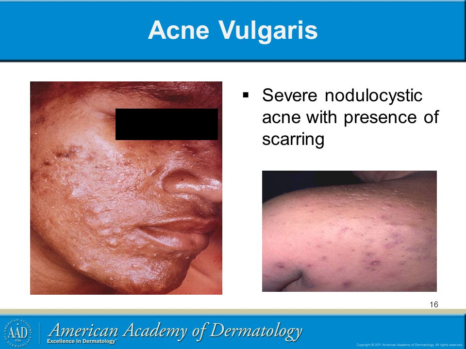 16 Acne Vulgaris  Severe nodulocystic acne with presence of scarring