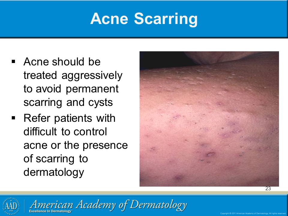 Acne Scarring  Acne should be treated aggressively to avoid permanent scarring and cysts  Refer patients with difficult to control acne or the prese