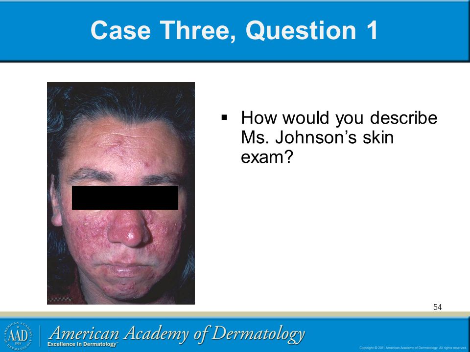 54 Case Three, Question 1  How would you describe Ms. Johnson's skin exam?