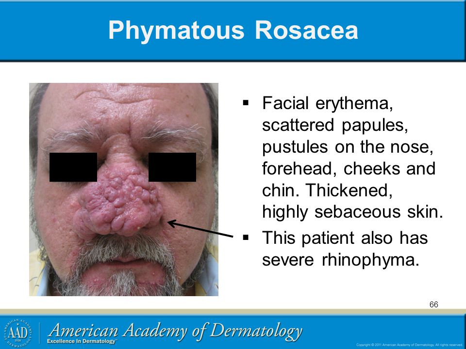 66 Phymatous Rosacea  Facial erythema, scattered papules, pustules on the nose, forehead, cheeks and chin. Thickened, highly sebaceous skin.  This p