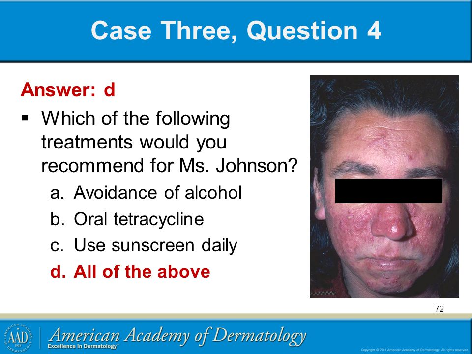 Case Three, Question 4 Answer: d  Which of the following treatments would you recommend for Ms. Johnson? a.Avoidance of alcohol b.Oral tetracycline c