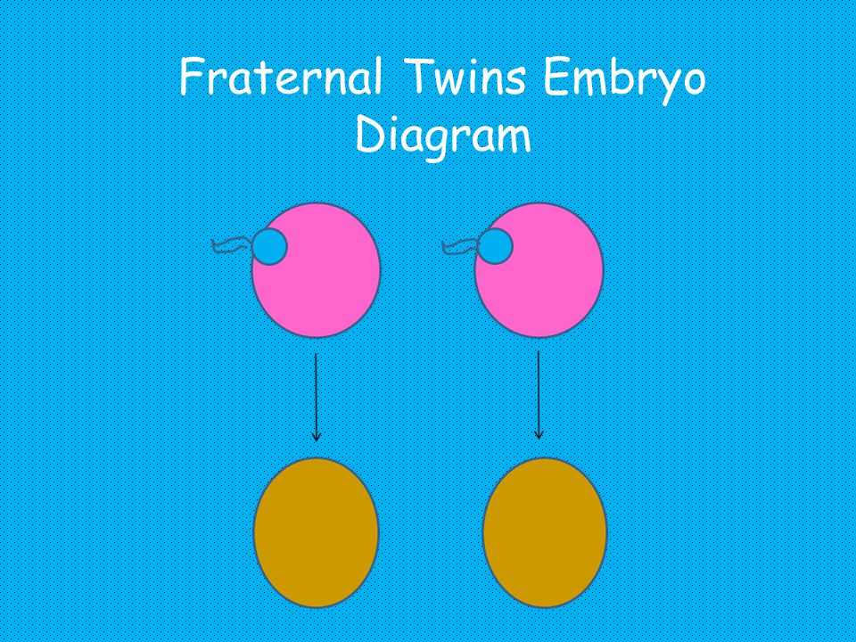 Fraternal Twins Embryo Diagram
