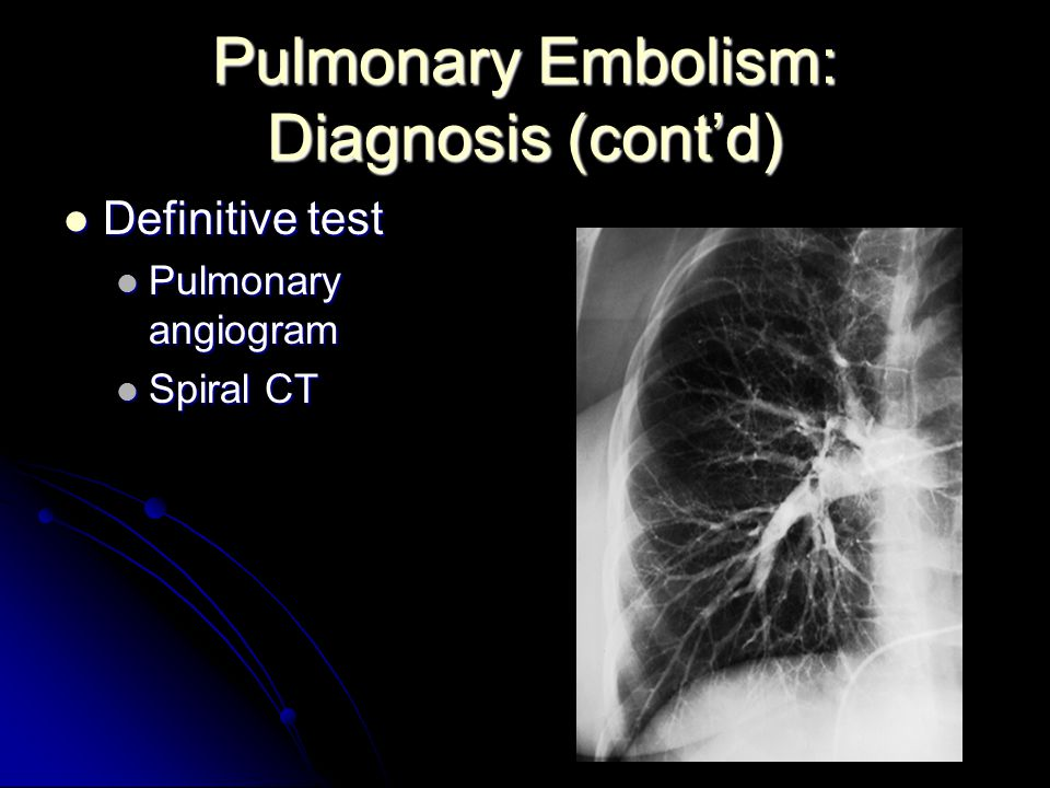 Pulmonary Embolism: Diagnosis (cont'd) Definitive test Definitive test Pulmonary angiogram Pulmonary angiogram Spiral CT Spiral CT