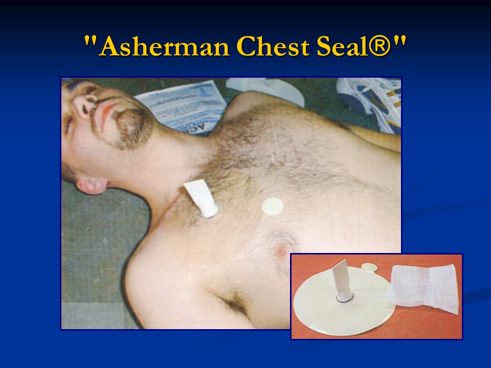 Asherman Chest Seal 