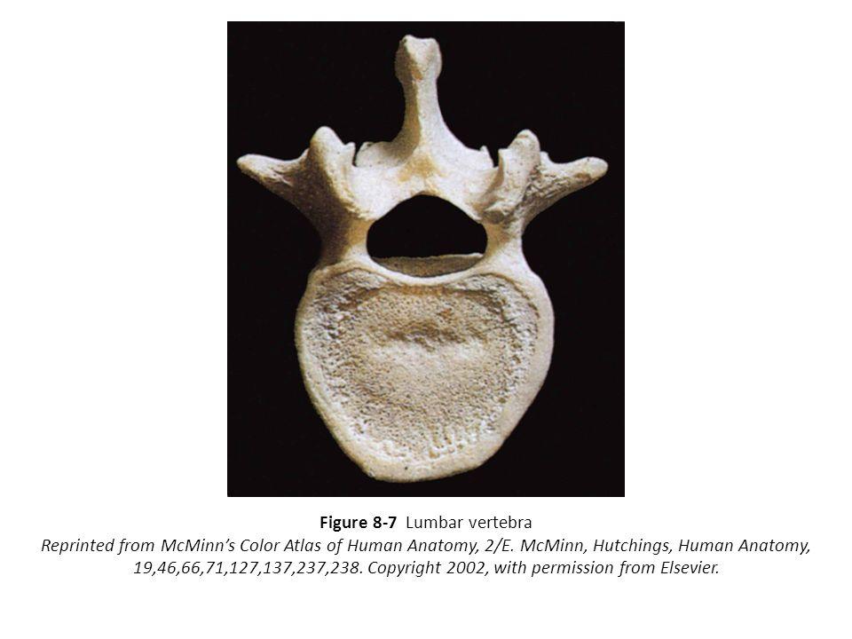 Figure 8-7 Lumbar vertebra Reprinted from McMinn's Color Atlas of Human Anatomy, 2/E. McMinn, Hutchings, Human Anatomy, 19,46,66,71,127,137,237,238. C