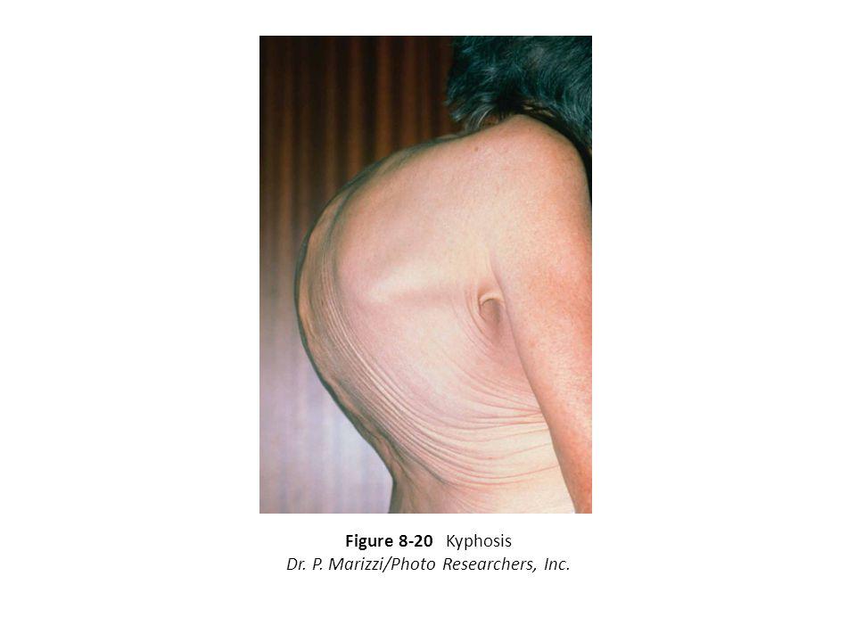 Figure 8-20 Kyphosis Dr. P. Marizzi/Photo Researchers, Inc.