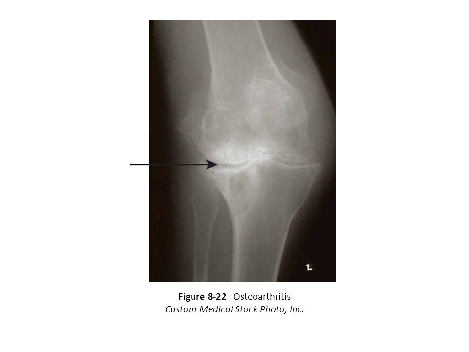 Figure 8-22 Osteoarthritis Custom Medical Stock Photo, Inc.