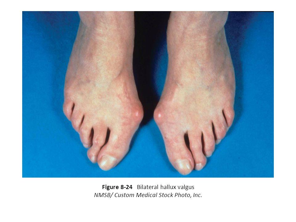 Figure 8-24 Bilateral hallux valgus NMSB/ Custom Medical Stock Photo, Inc.
