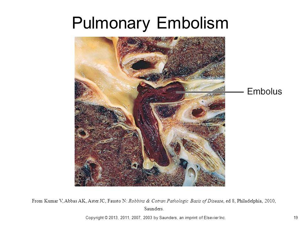 Pulmonary Embolism From Kumar V, Abbas AK, Aster JC, Fausto N: Robbins & Cotran Pathologic Basis of Disease, ed 8, Philadelphia, 2010, Saunders. 19 Co