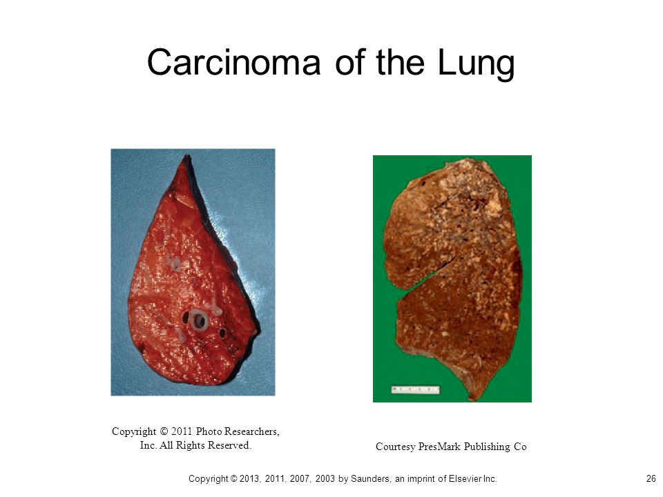 Carcinoma of the Lung Copyright © 2011 Photo Researchers, Inc.