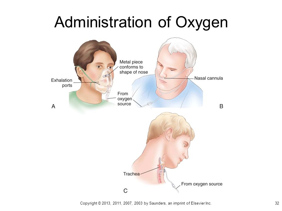 Administration of Oxygen 32 Copyright © 2013, 2011, 2007, 2003 by Saunders, an imprint of Elsevier Inc.
