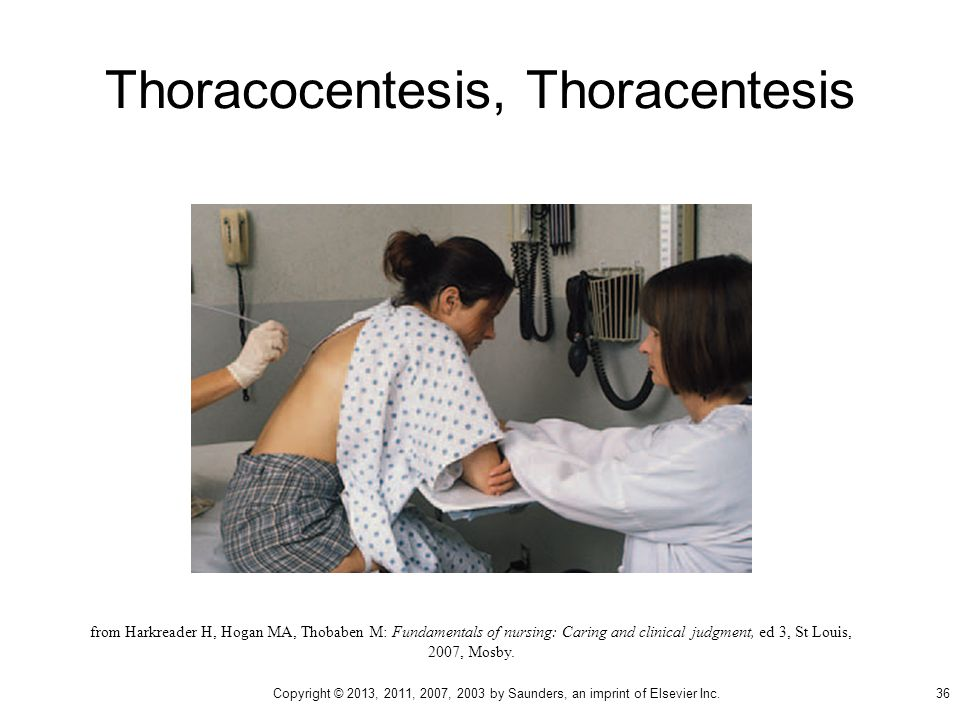 Thoracocentesis, Thoracentesis from Harkreader H, Hogan MA, Thobaben M: Fundamentals of nursing: Caring and clinical judgment, ed 3, St Louis, 2007, Mosby.