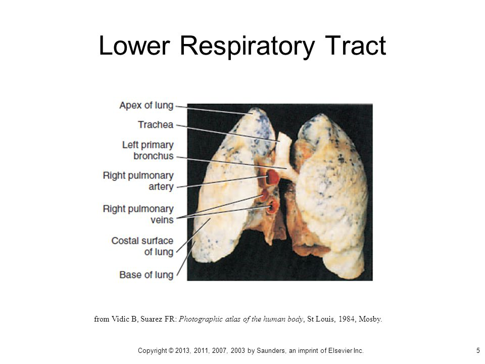 Lower Respiratory Tract from Vidic B, Suarez FR: Photographic atlas of the human body, St Louis, 1984, Mosby.