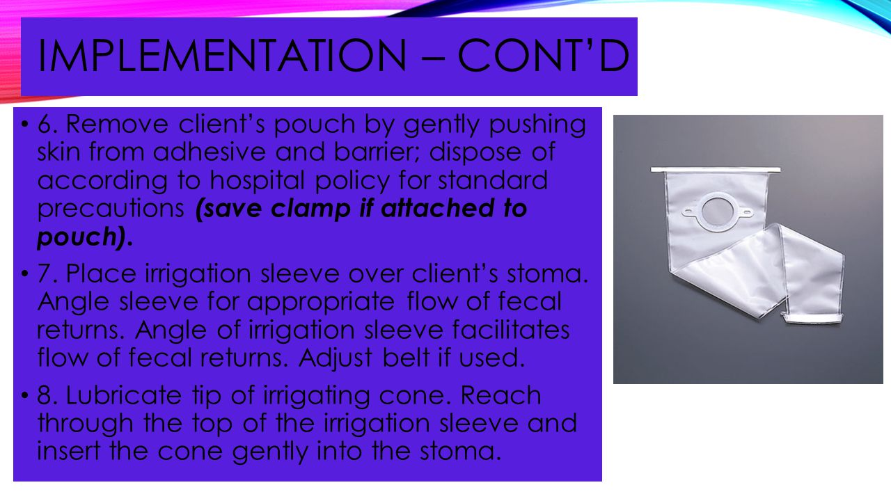 IMPLEMENTATION – CONT'D 6. Remove client's pouch by gently pushing skin from adhesive and barrier; dispose of according to hospital policy for standar