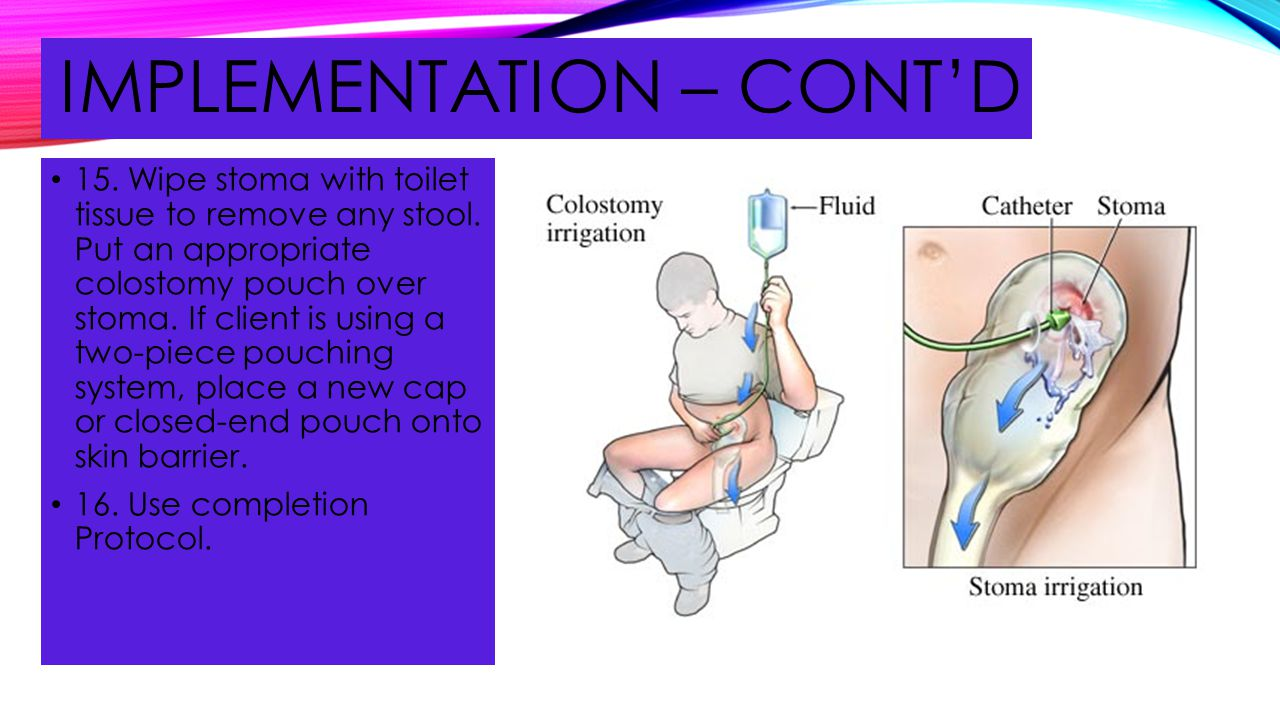 IMPLEMENTATION – CONT'D 15. Wipe stoma with toilet tissue to remove any stool. Put an appropriate colostomy pouch over stoma. If client is using a two