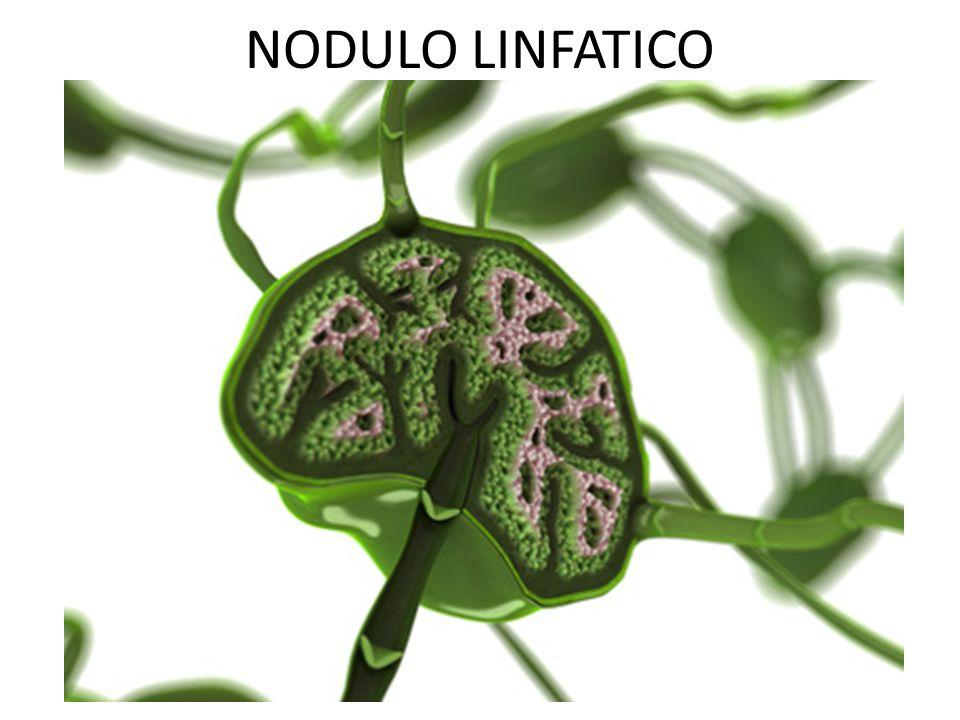 NODULO LINFATICO