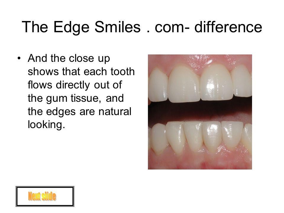 The Edge Smiles.