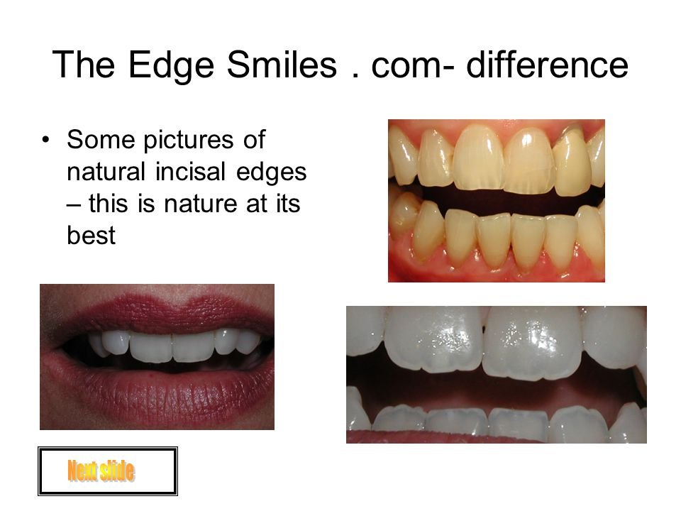 The Edge Smiles. com- difference The Edge Veneers come very close to copying nature