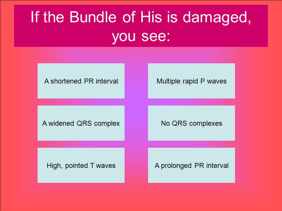 If the Bundle of His is damaged, you see: A shortened PR interval High, pointed T wavesA prolonged PR interval No QRS complexes Multiple rapid P waves