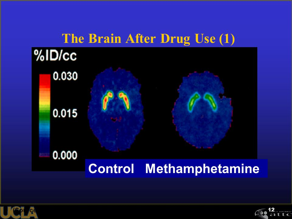 12 The Brain After Drug Use (1) (Source: McCann et al. (1998). Journal of Neuroscience, 18, 8417-8422.) Control Methamphetamine