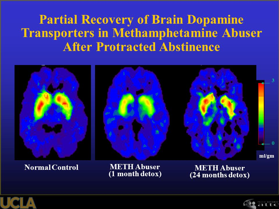 Partial Recovery of Brain Dopamine Transporters in Methamphetamine Abuser After Protracted Abstinence Normal Control METH Abuser (1 month detox) METH