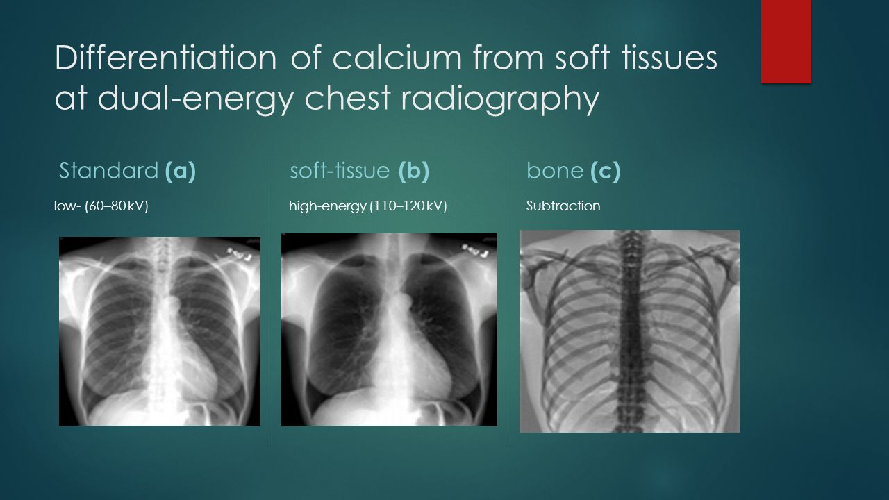 Differentiation of calcium from soft tissues at dual-energy chest radiography Standard (a) low- (60–80 kV) soft-tissue (b) high-energy (110–120 kV) bo