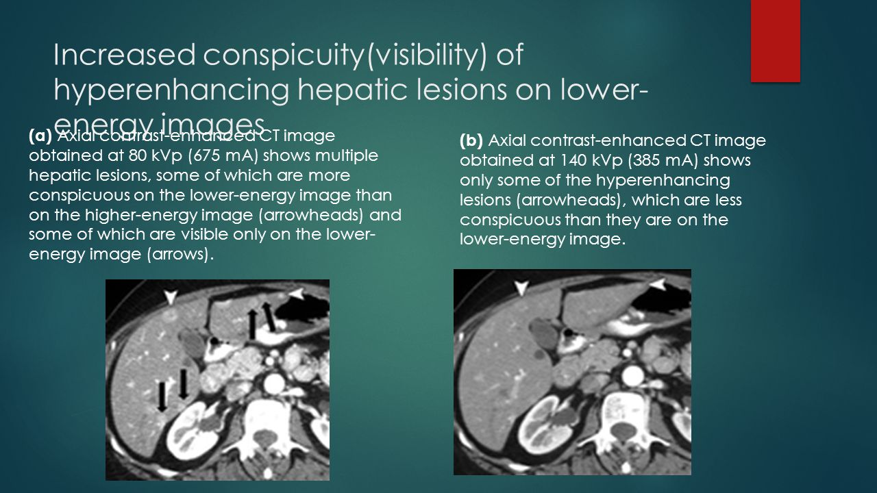 Increased conspicuity(visibility) of hyperenhancing hepatic lesions on lower- energy images (a) Axial contrast-enhanced CT image obtained at 80 kVp (6