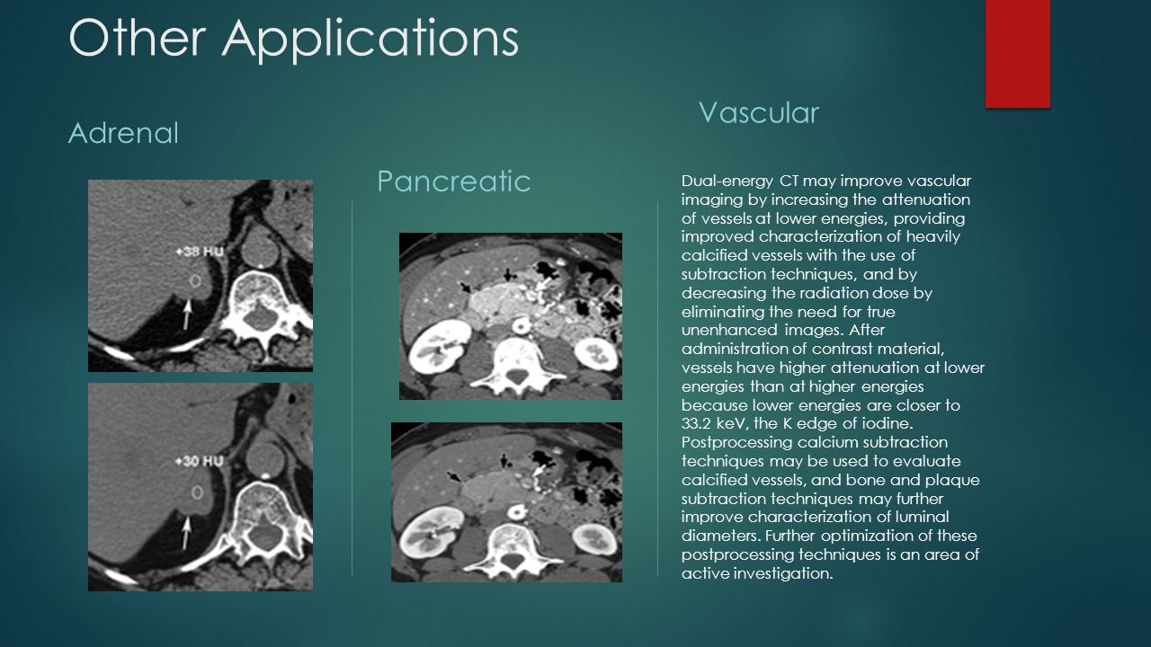 Other Applications Adrenal Pancreatic Vascular Dual-energy CT may improve vascular imaging by increasing the attenuation of vessels at lower energies,