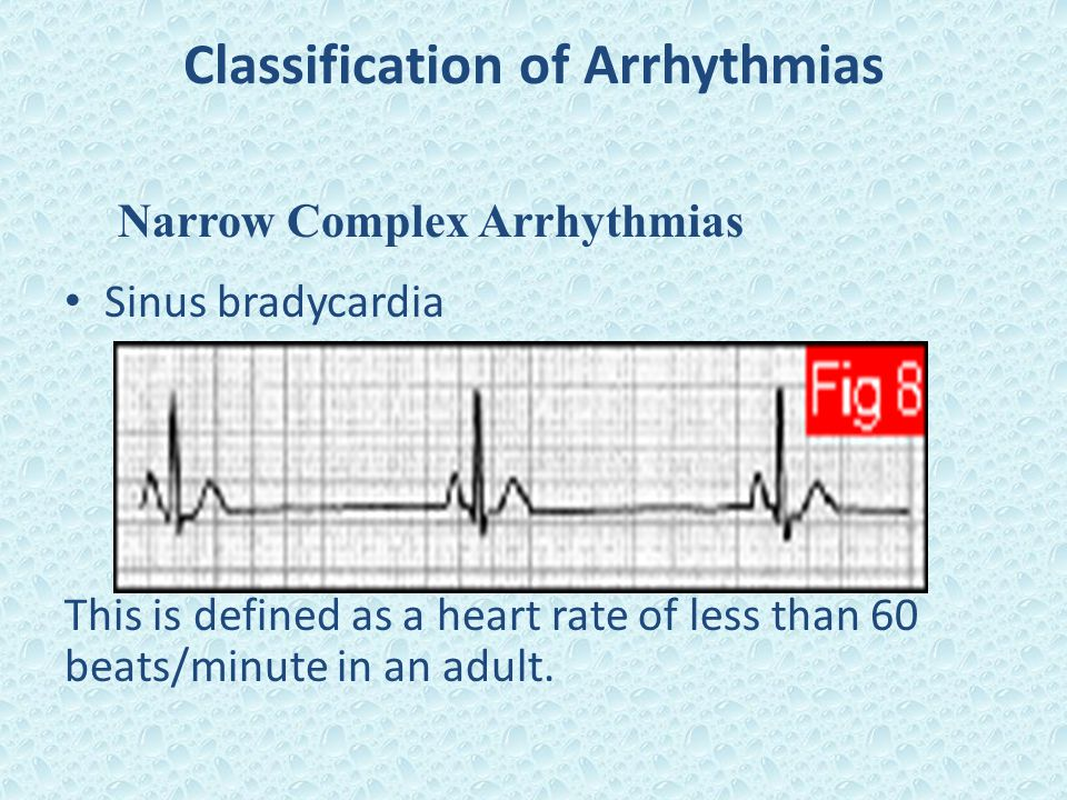 Classification of Arrhythmias Narrow Complex Arrhythmias Sinus bradycardia This is defined as a heart rate of less than 60 beats/minute in an adult.
