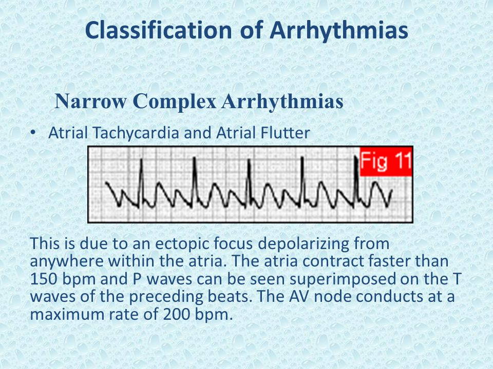 Classification of Arrhythmias Narrow Complex Arrhythmias Atrial Tachycardia and Atrial Flutter This is due to an ectopic focus depolarizing from anywh