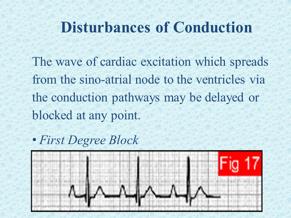 Disturbances of Conduction The wave of cardiac excitation which spreads from the sino-atrial node to the ventricles via the conduction pathways may be delayed or blocked at any point.