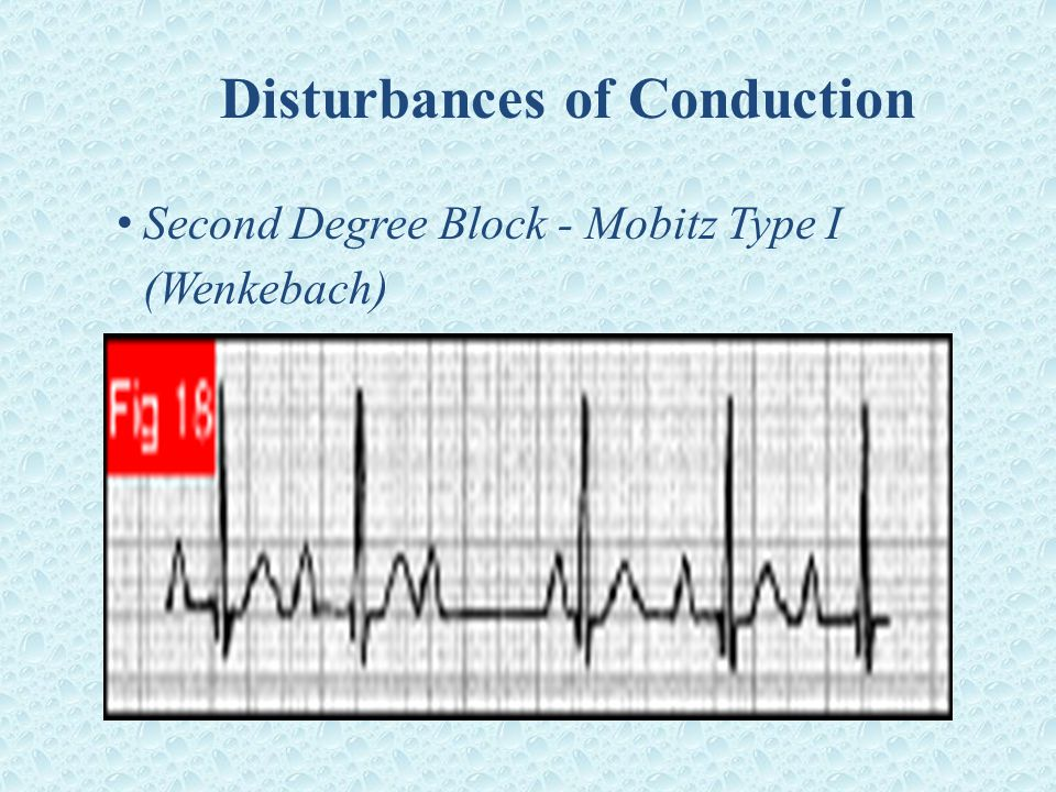 Disturbances of Conduction Second Degree Block - Mobitz Type I (Wenkebach)