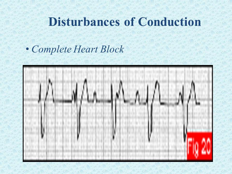 Disturbances of Conduction Complete Heart Block