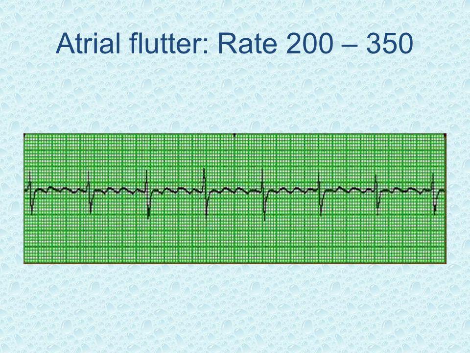 Atrial flutter: Rate 200 – 350